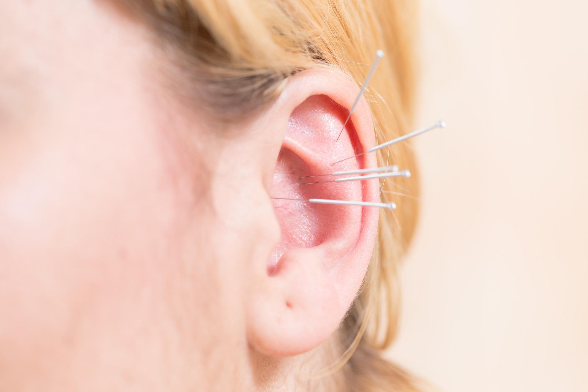 Akupunkturbehaundlung